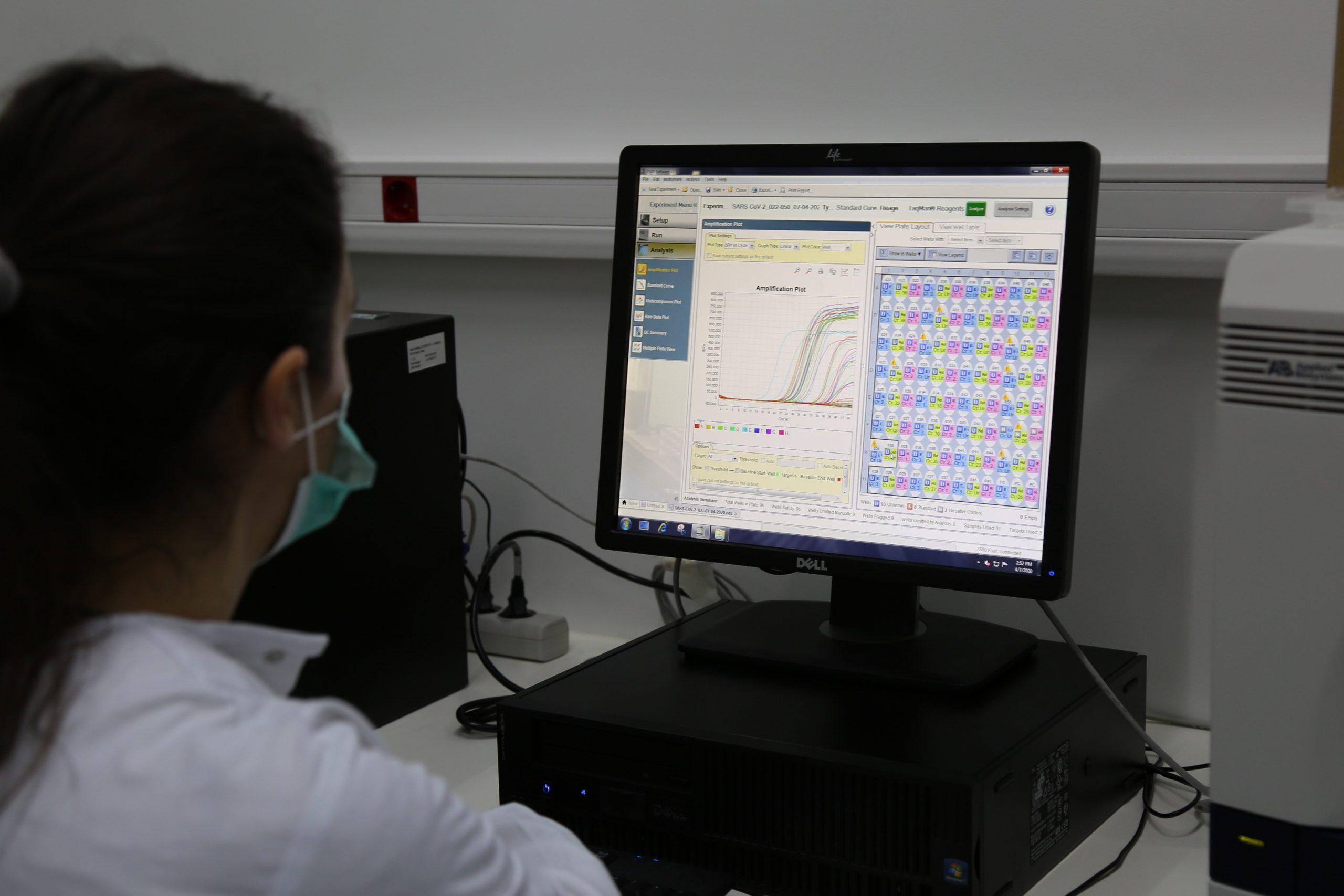 Teste de Serodiagnóstico COVID-19